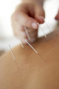 Does acupuncture hurt? How can it help?